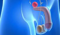cancer de prostata