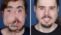 cirugia plastica de cara